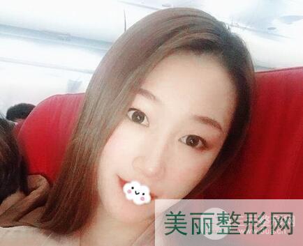 上海逆时针去眼袋案例图