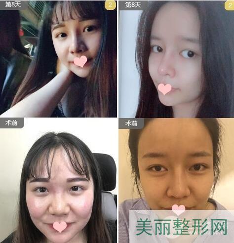 武汉协和医院整形科双眼皮案例