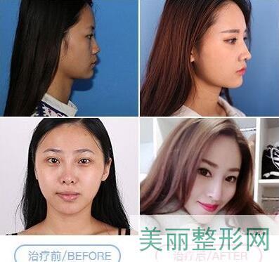 成都八大处鼻综合手术案例