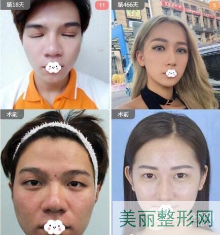湘雅三医院整形科双眼皮案例