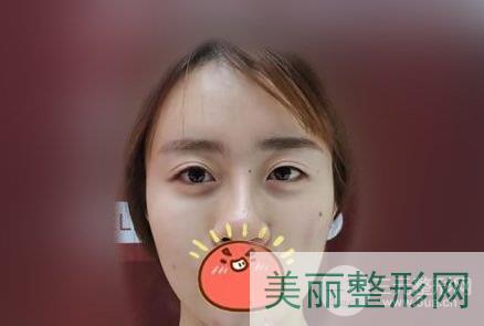 北京联合丽格双眼皮修复案例