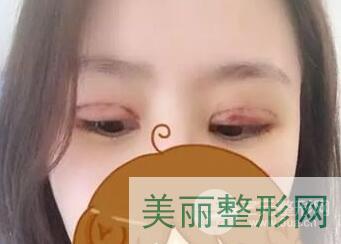 菏泽华美双眼皮手术术后