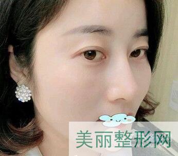 浙医二院整形外科隆鼻案例