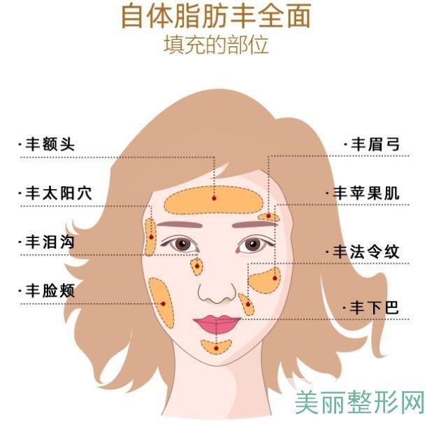 北京自体脂肪填充优质医院名单