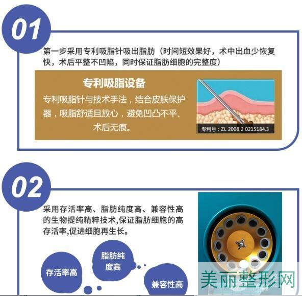 北京自体脂肪填充哪家医院好?