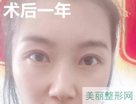天津肿瘤医院整形科双眼皮案例