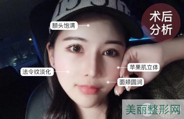 上海九院整形医院面部填充案例