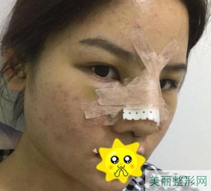 西京医院整形科隆鼻术后1天
