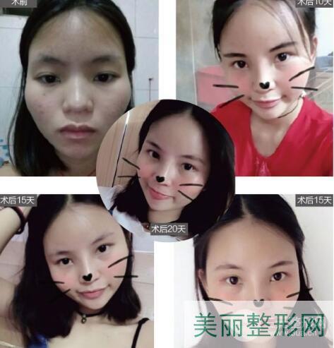 张颖医生双眼皮案例