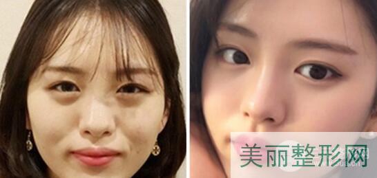 郑州华山医院整形美容中心特色项目