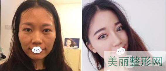 青岛大学附属医院整形美容科的开展项目