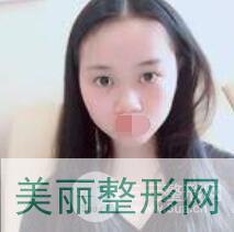 隆鼻手术案例