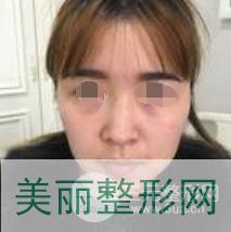 鼻部整形案例