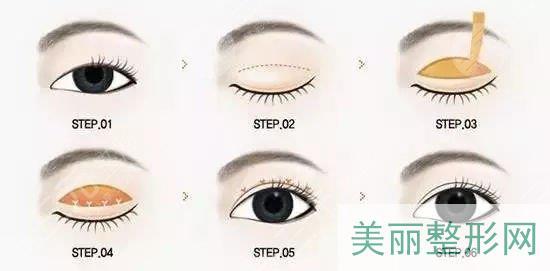 全切双眼皮术后护理