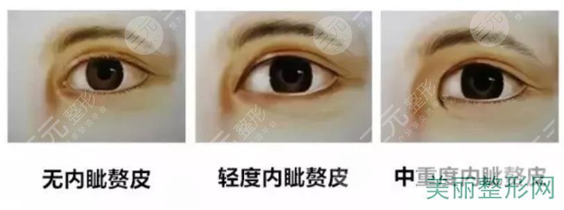 开眼角的手术方法