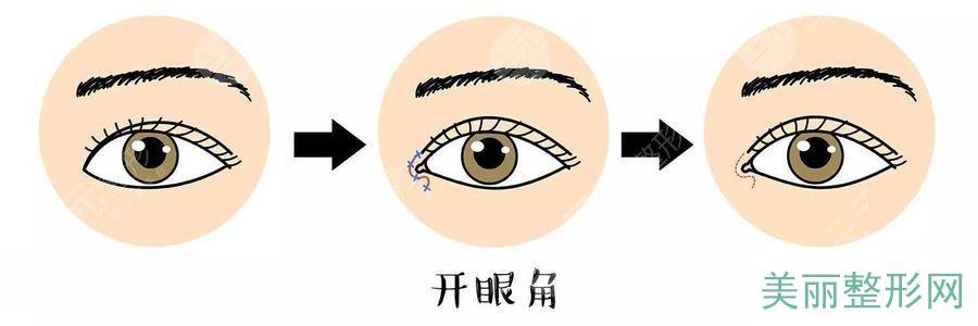 开眼角术后护理