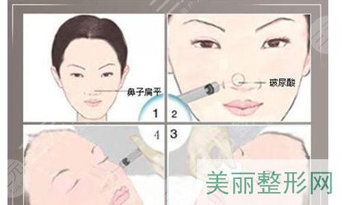 注射隆鼻后如何护理?