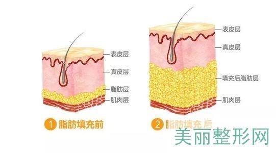 脂肪填充垫鼻基底