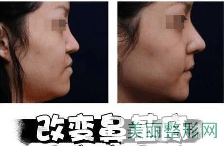 垫鼻基底效果对比