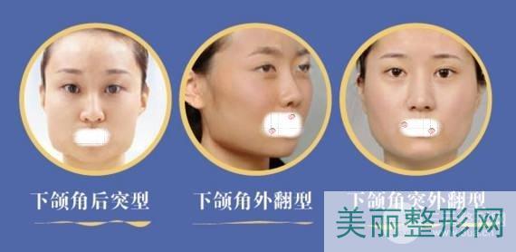 磨下颌骨手术