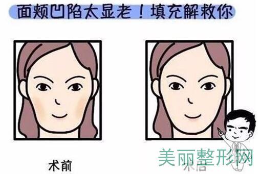 面部填充术