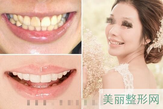 全瓷牙贴面效果图