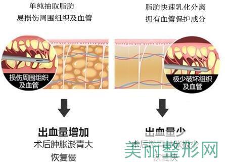 背部吸脂瘦身术原理