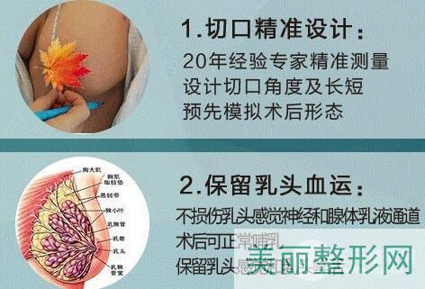 乳房缩小整形术科普