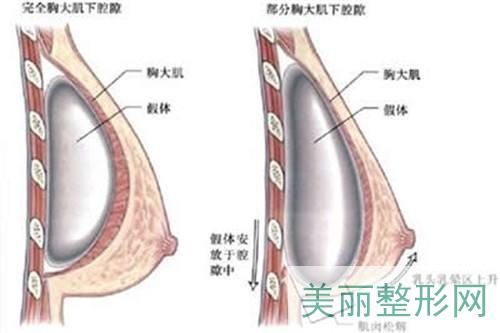 假体美胸手术
