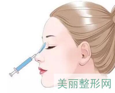 注射隆鼻效果好吗