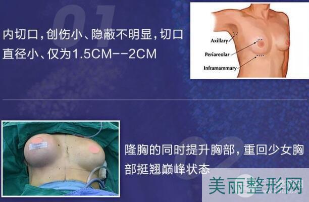 假体硅胶隆胸手术优点