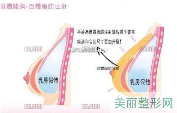 复合隆胸手术