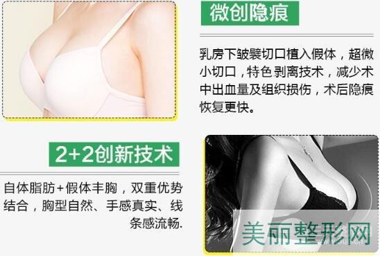 复合隆胸优点