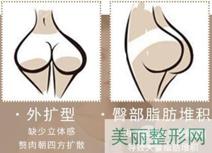 吸脂瘦臀手术