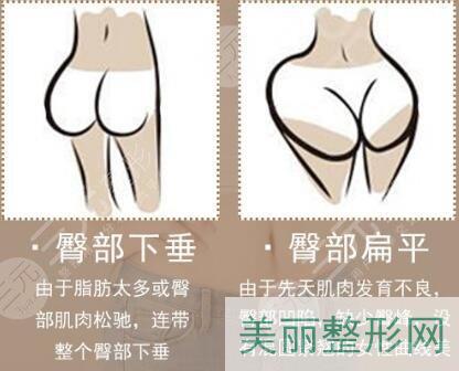 臀部吸脂塑形适合哪些人