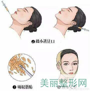 手术过程 注意事项