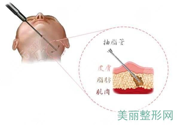 面部光纤溶脂可能的副作用