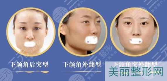 适合女性不对称下颌角整形手术的人