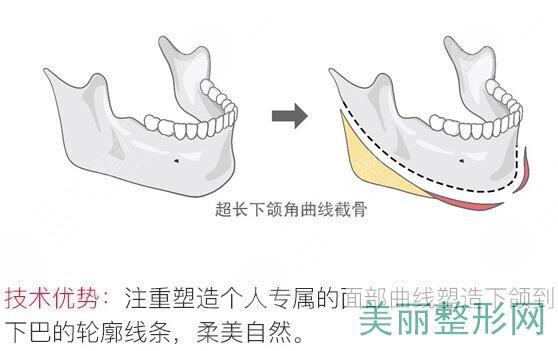 长曲线下颌角整形手术