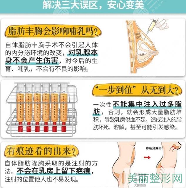自体脂肪细胞丰胸手术