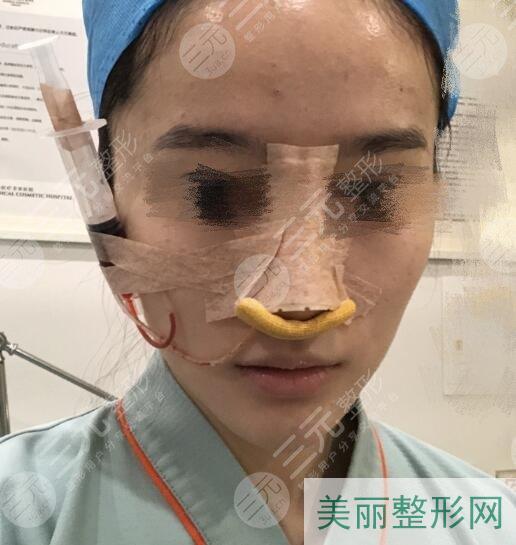 塌鼻子的救星 肋软骨隆鼻