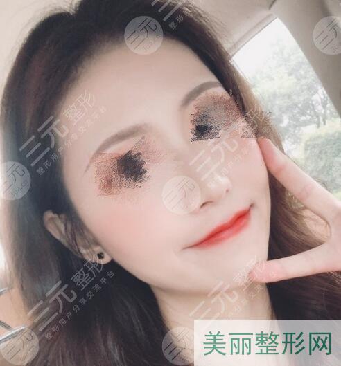 硅胶隆鼻前后对比