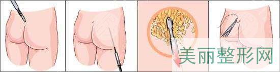 手术原理过程
