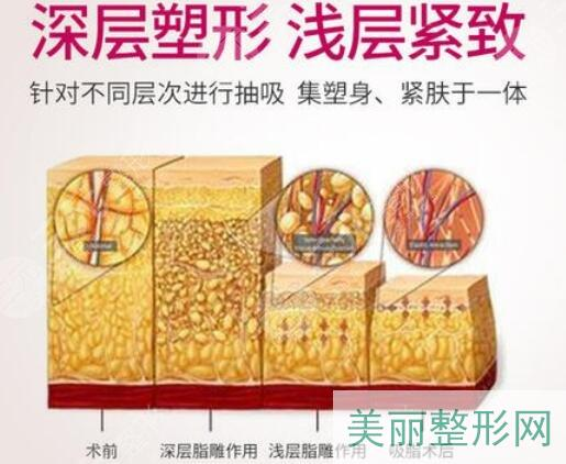 臀部吸脂塑形手术优点