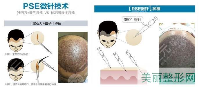 微针植发技术