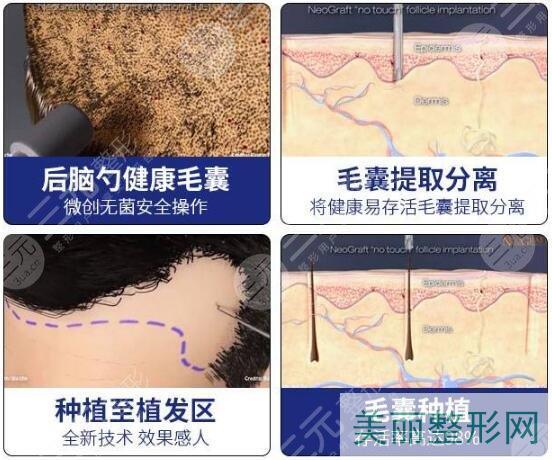 植发技术的优势