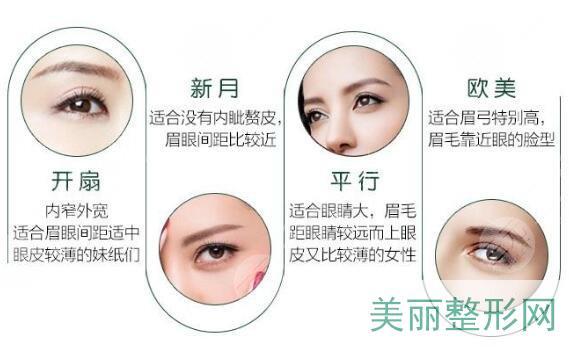 双眼皮风格种类图片