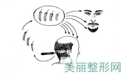 胡须种植手术