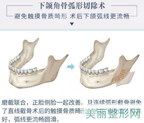 下颌角截骨多长时间能够消肿