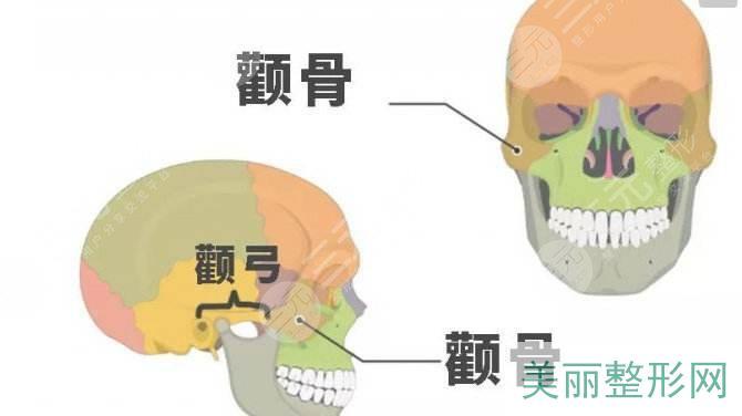磨颧骨手术简介